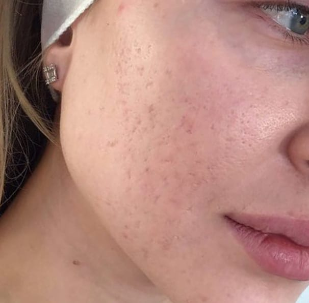 Laser Acne Treatment - After 01