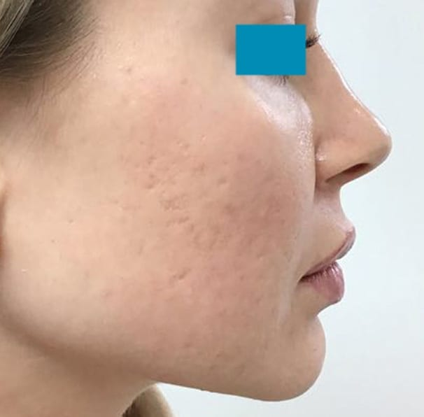 Laser Acne Treatment - After 02