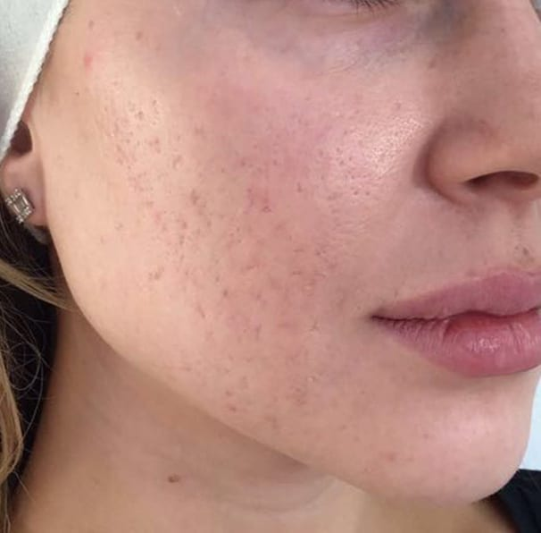 Laser Acne Treatment - After 04
