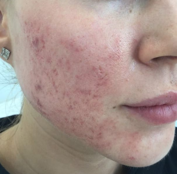 Laser Acne Treatment - Before 04