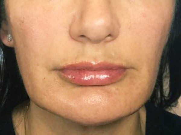 Dermal Fillers - Marionette Lines - After 01