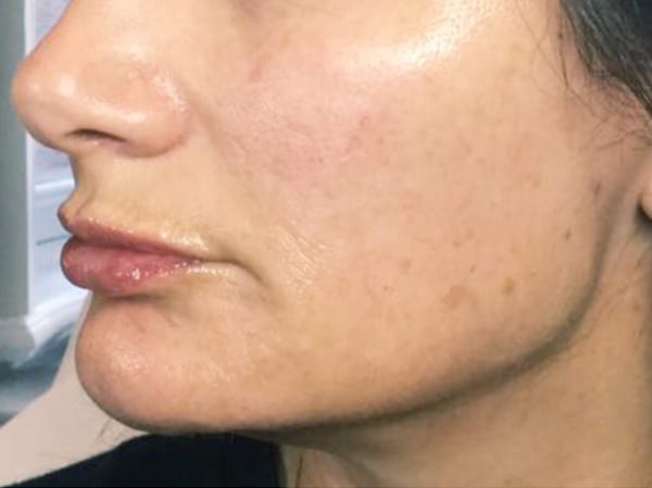Dermal Fillers - Marionette Lines - After 02