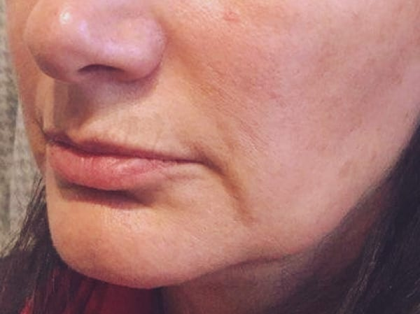 Dermal Fillers - Marionette Lines - Before 02