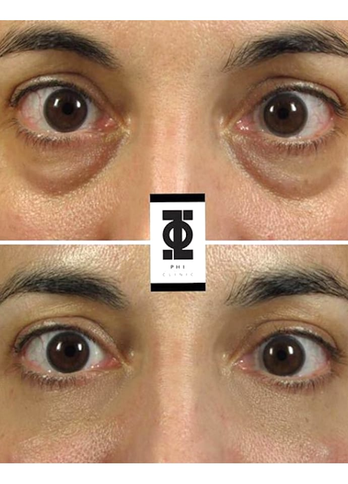 What about pigmentation around the eyes? - Dermal Filler Tear Trough Treatment london 690x960