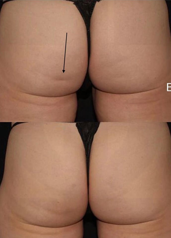 Factors To Consider - FDA approved cellulite treatment results 690x960
