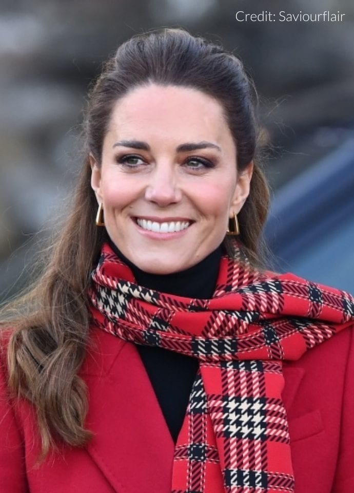 Can Thin Lips Be Beautiful?  - Kate middleton PHI Clinic London 690x960 1 690x960