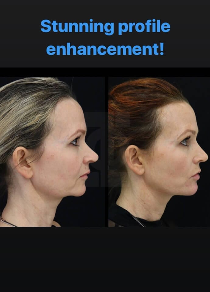 Review - Non Surgical Facelift Testimonial 690x960