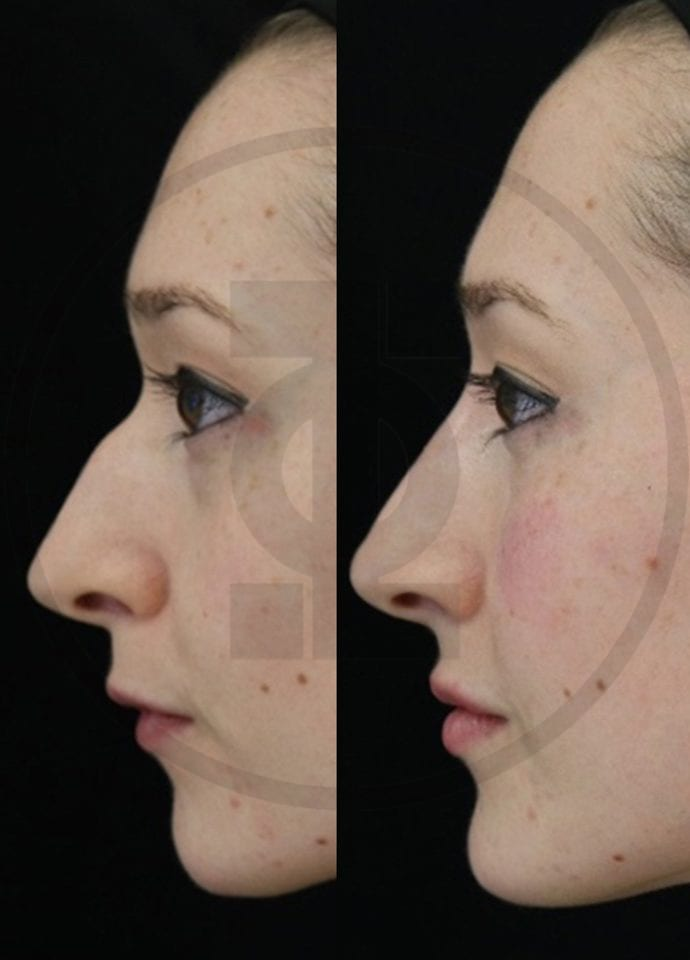 Non-surgical rhinoplasty : dermal fillers - Nose Non Surgical Nose Reshaping 690x960