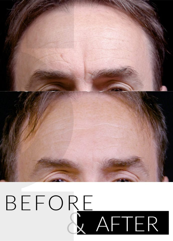 Patient Journey For Forehead Lines  - Treatment PHI Clinic London 690x960 1 690x960