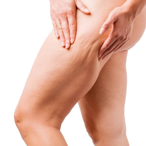 best cellulite treatment1920x1280