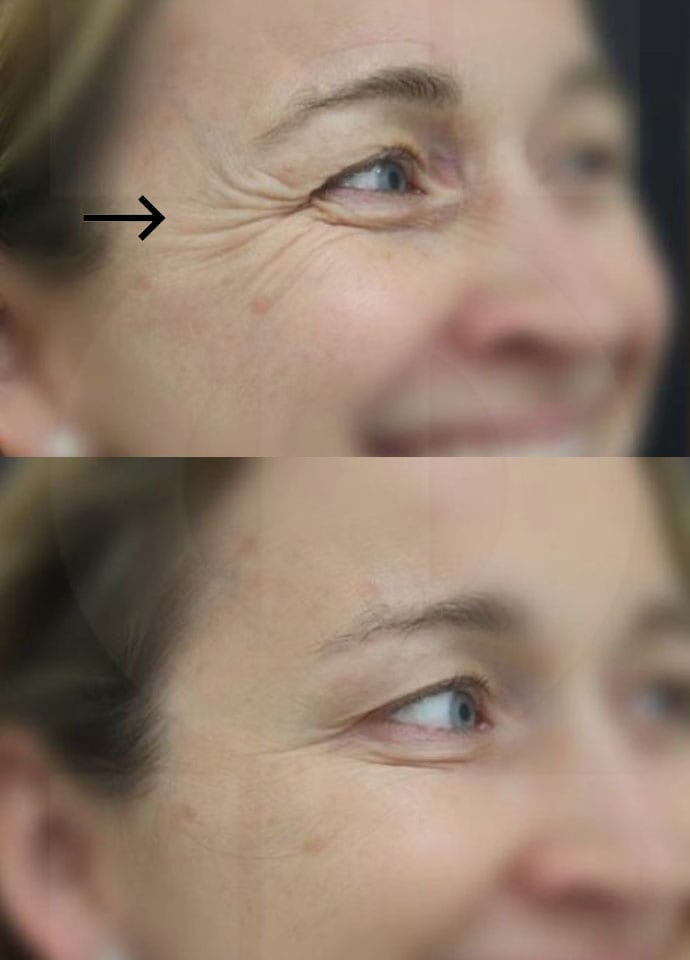 Factors To Consider - best crows feet botox treatment london 690x960
