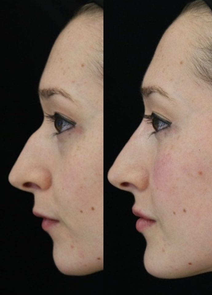 What does non surgical nose reshaping treat? - best non surgical nose job harley street london