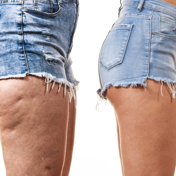 cellulite treatment london faqs