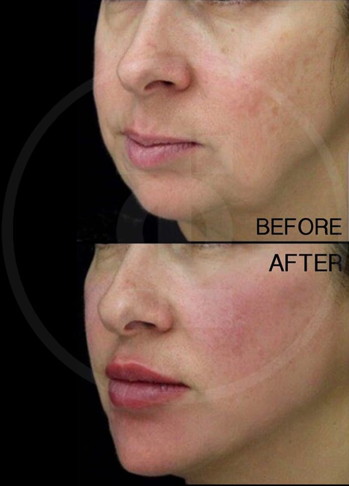 Who would be suitable for non-surgical cheek reshaping? - cheek fillers london enhancement 690x960