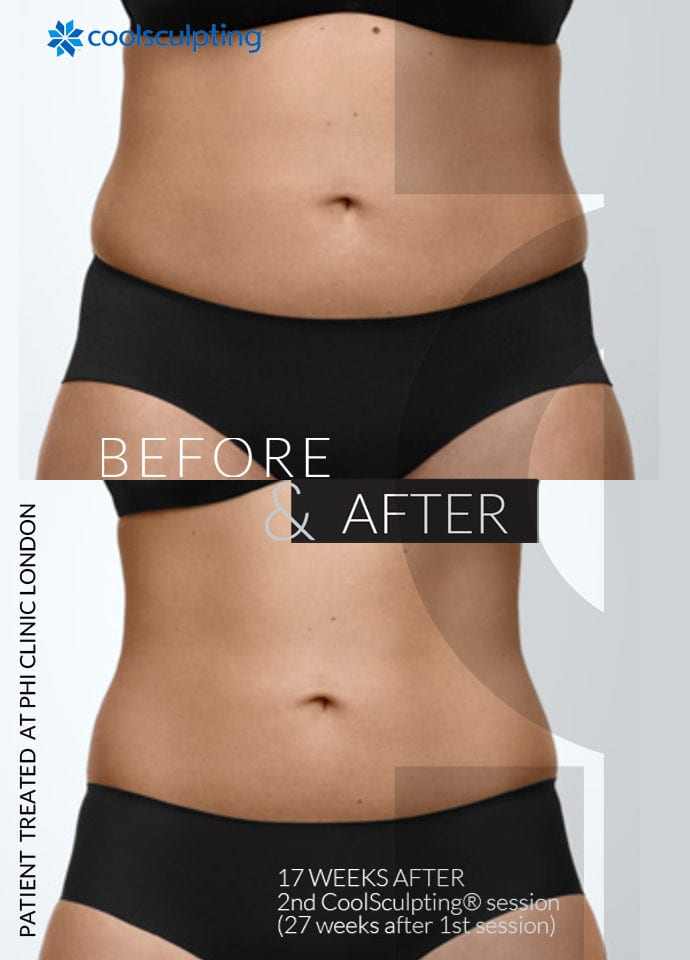 Fat Freezing To Achieve Dimples - coolsculpting before after stomach london 690x960 1 690x960
