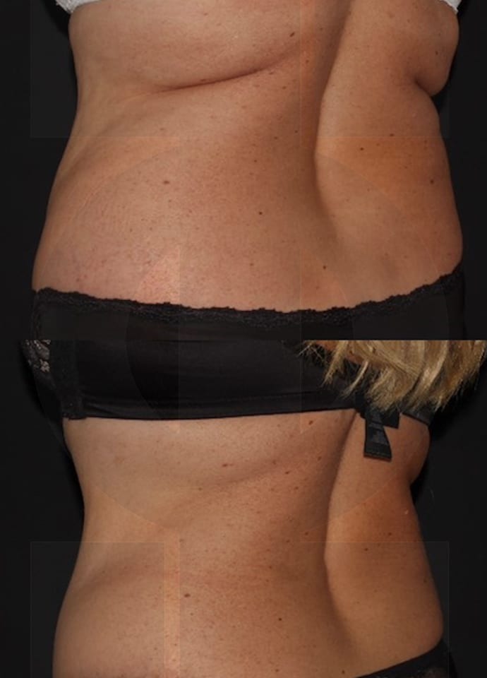 Results - coolsculpting results london fat reduction cryolipolysis technology 690x960 1