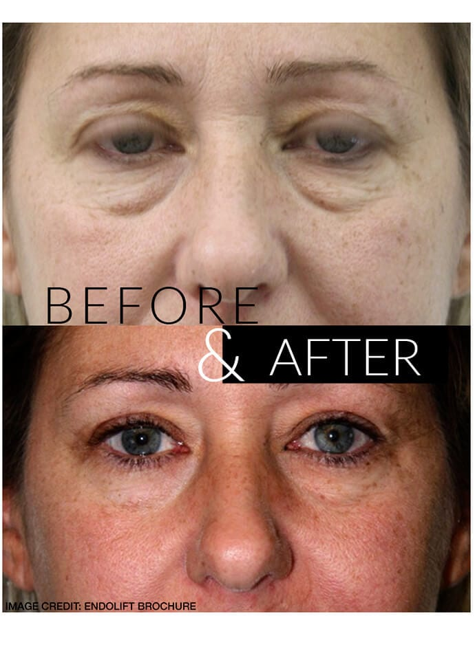 Endolift® Results - endolift results london 690x960 1