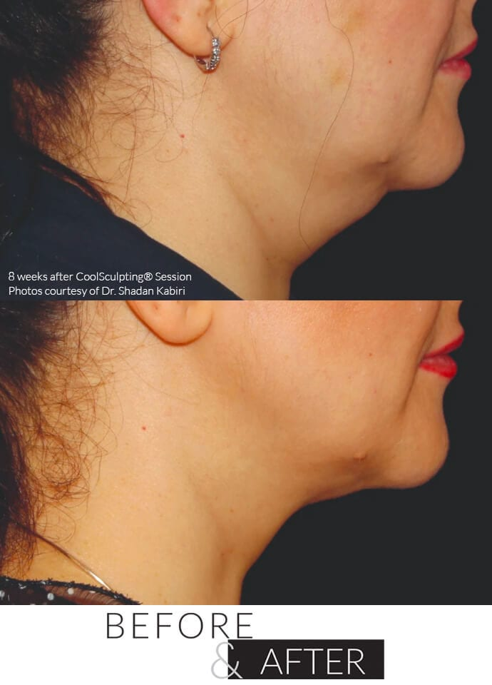 Technical Information - fat freezing removal london 690x960 1 690x960