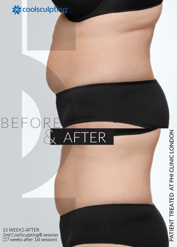 Technical Information - fat reduction and skin tightening 690x960 1 690x960