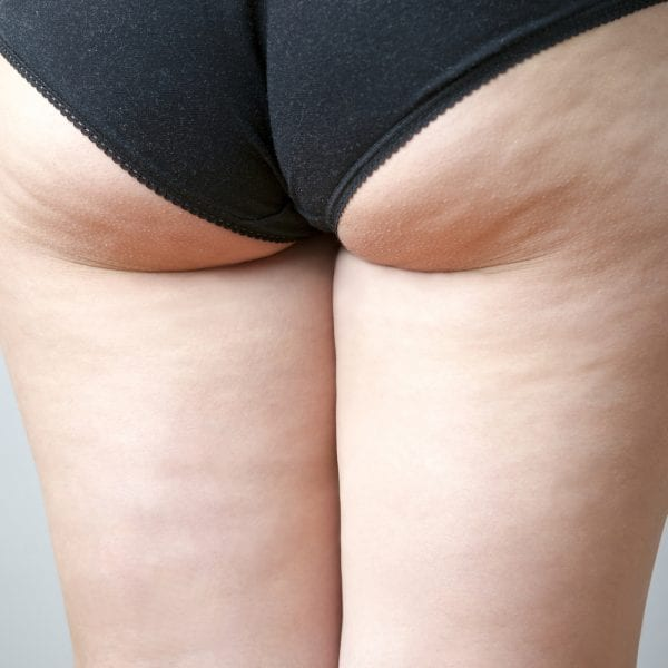 grades-of-cellulite-PHI-Clinic-London.jpg 1248 x 1000
