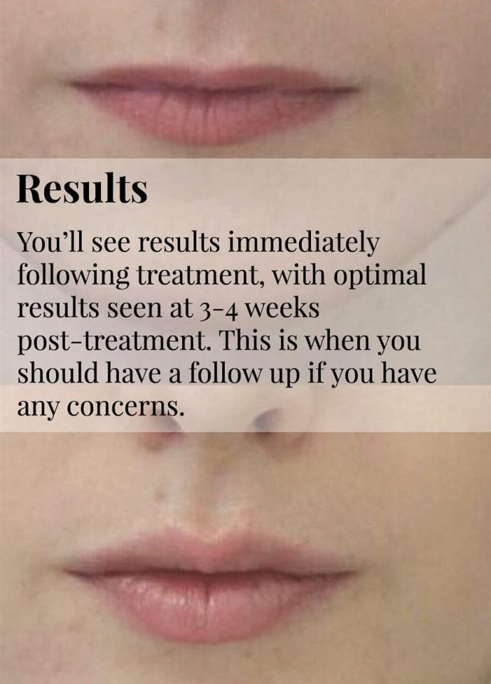 Dermal Filler Tear Trough Treatment Products - guide to lip injections phi clinic london 690x960 690x960
