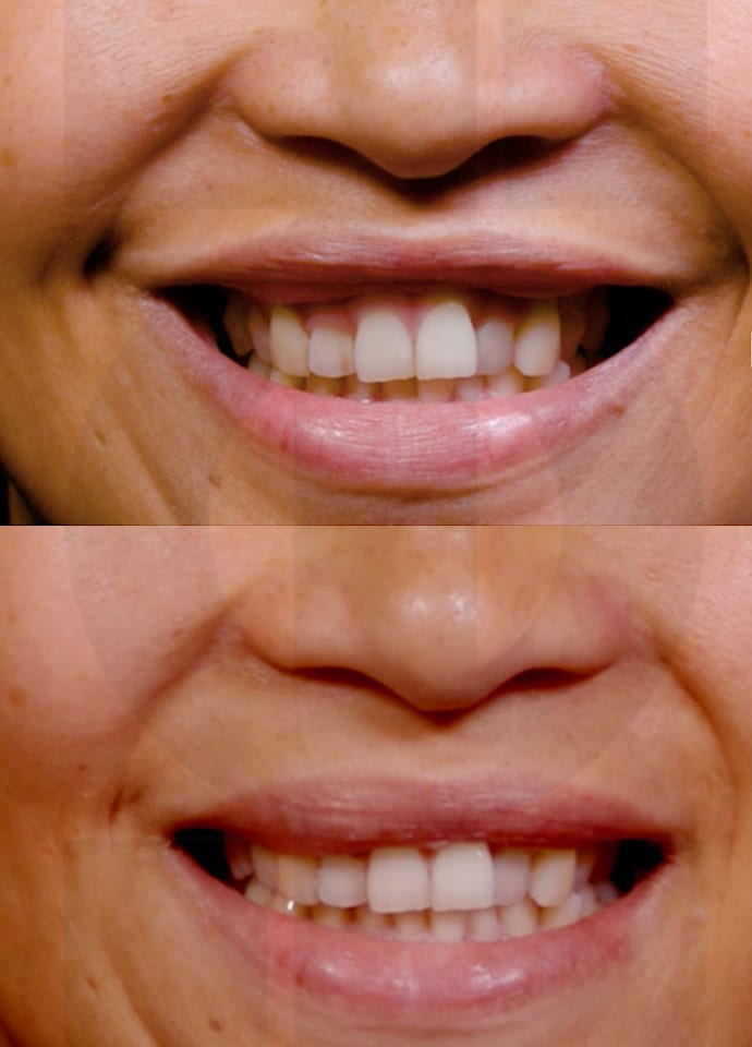 Highly Skilled Injectors - gummy smile results london 960x690