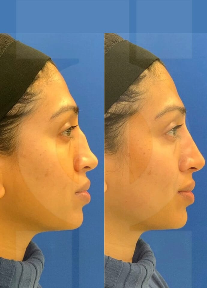 About HA Fillers - hump on nose dermal filler london 690x960