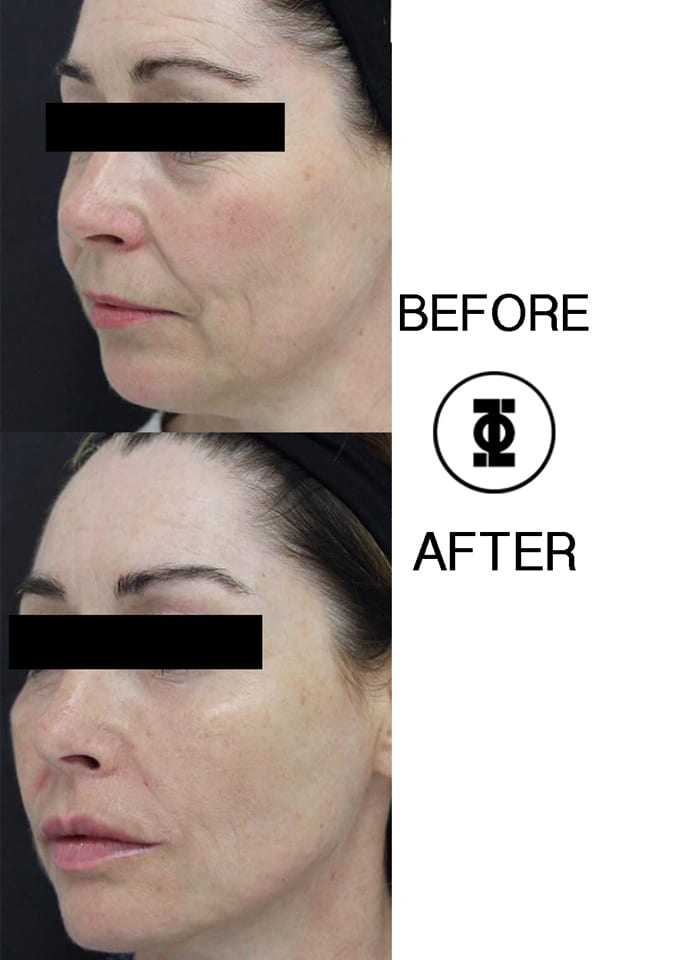 Can Filler Move? - jawline slimming phi clinic