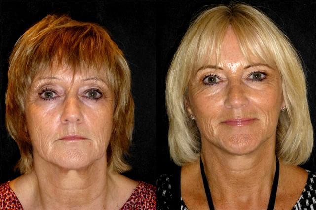 Lesley Facelift Recovery Week_12a
