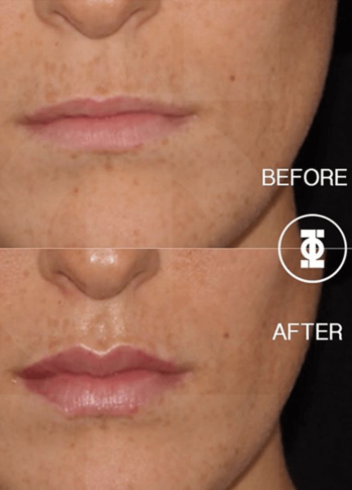 Technical Information - lip filler results before after 690x960