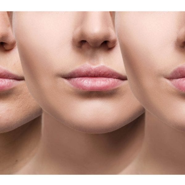 lip injectable fillers 1920x1280
