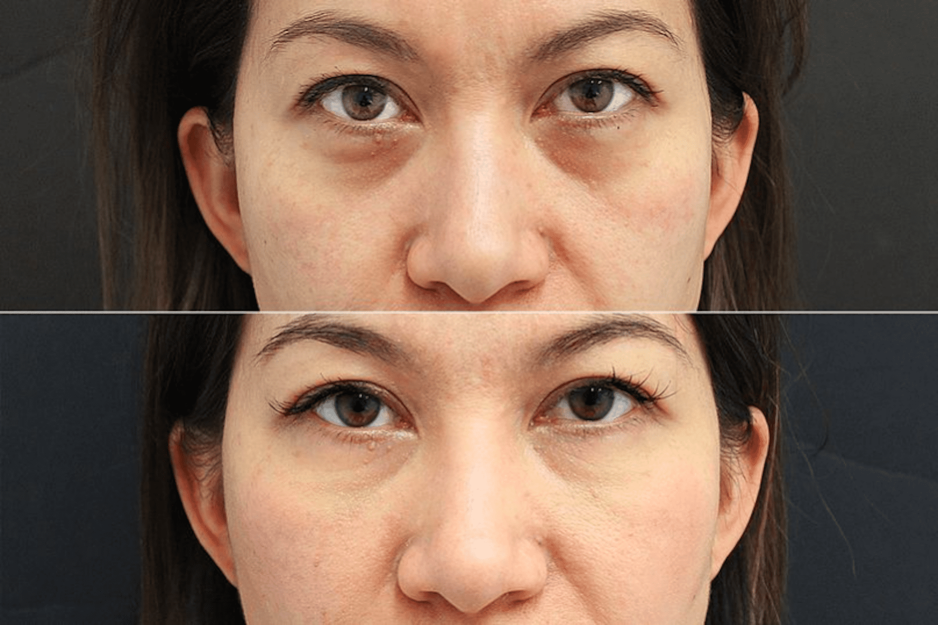 Technical Information - mirror online eye bags treatment nonsurgical