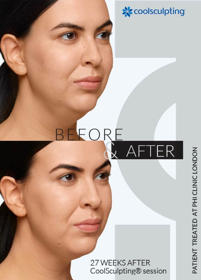 Other Factors To Consider - neck fat removal london 690x960 1 690x960