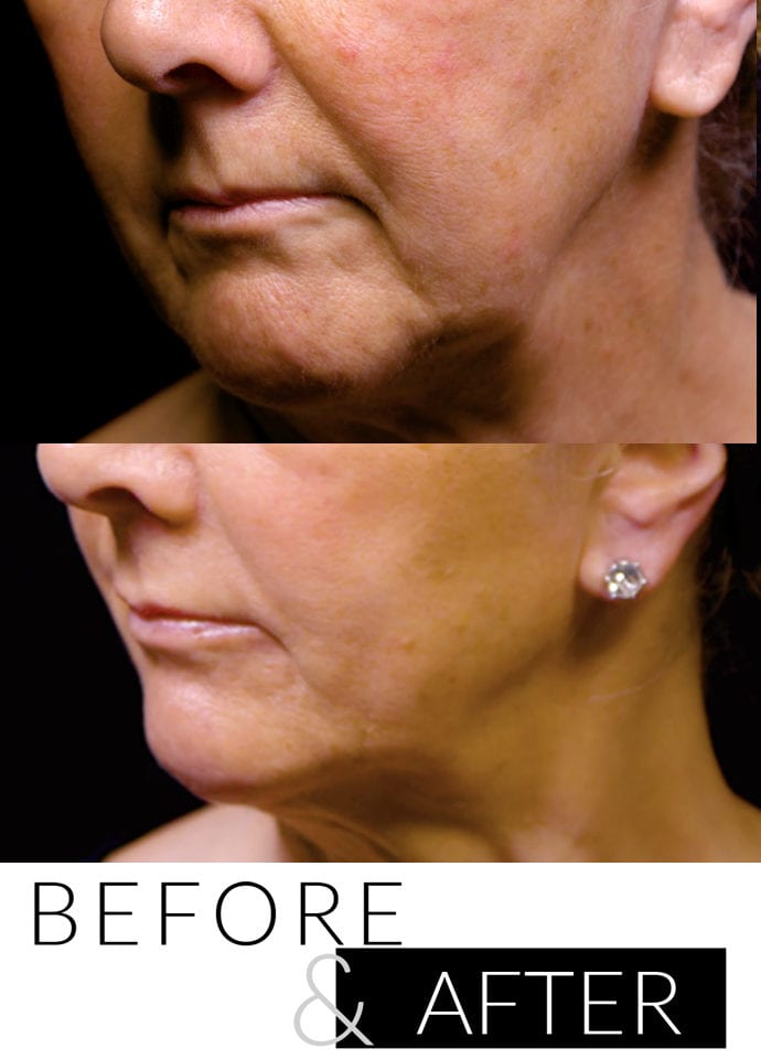 Non-surgical Facelift Before and After  - non surgical facelift PHI Clinic 690x960 1 690x960
