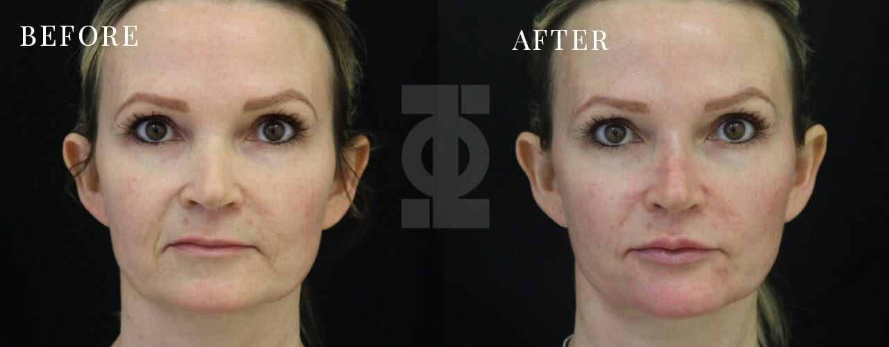 Technical Information - non surgical facelift before and after 1280x500