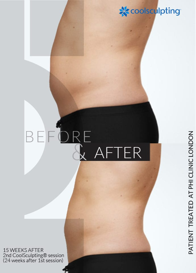 Health vs Appearance - non surgical fat reduction before after 690x960 1 690x960