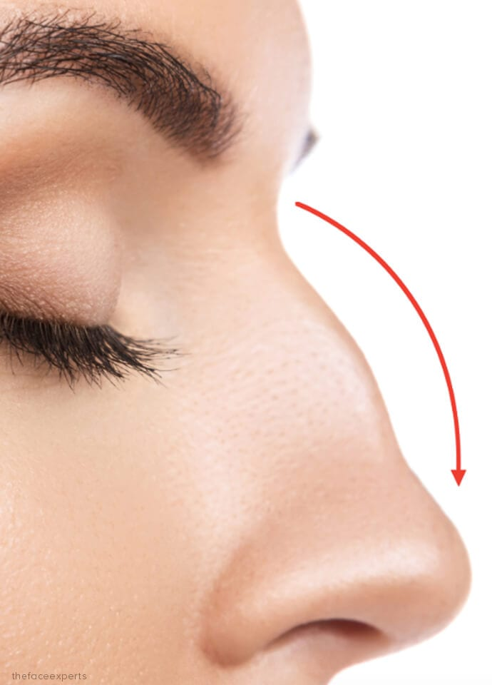 Non-Surgical Nose Reshaping - nose hump correction phi clinic 690x960