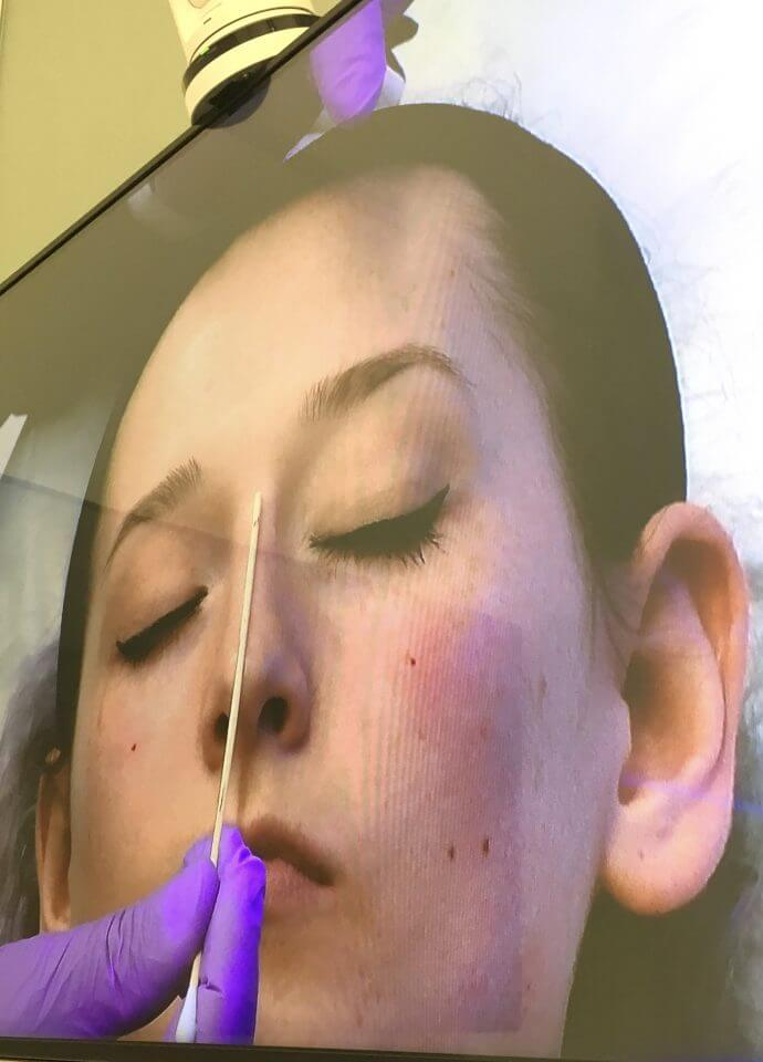 Doctor Training - nose reshaping harley street 690x960