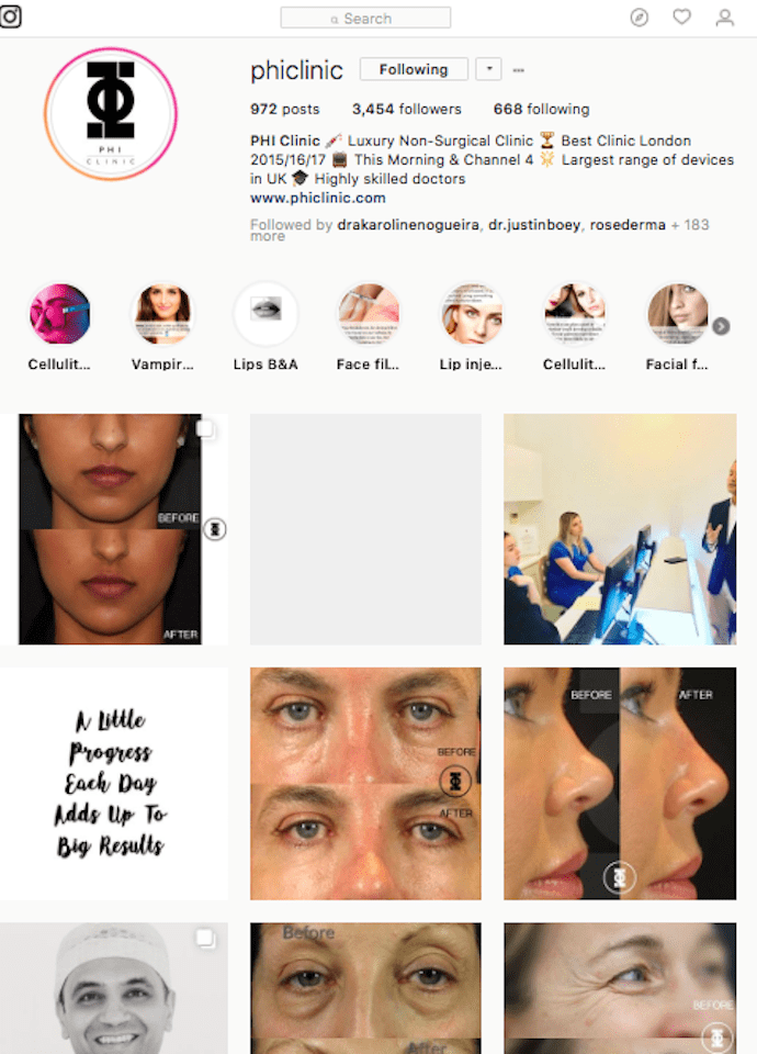 Your Cosmetic Journey - phi clinic instagram 690x960