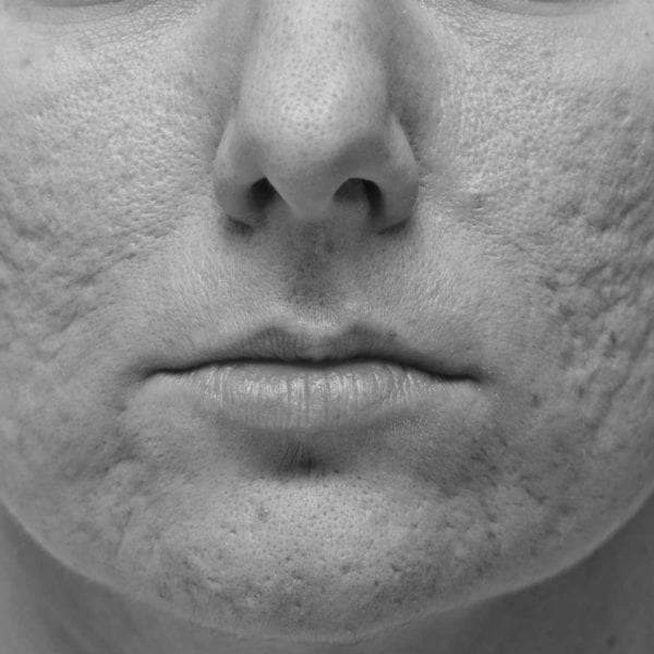 acne scars - Acne Scarring Treatment London