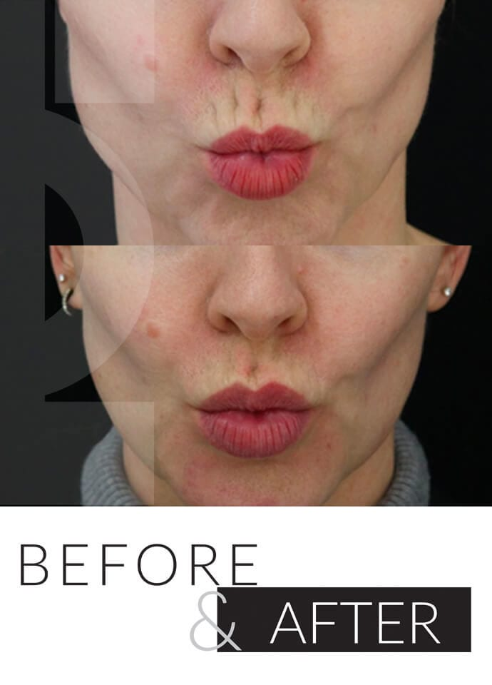 Causes of Vertical Lip Lines - smokers lips treatment london 690x960 1 690x960