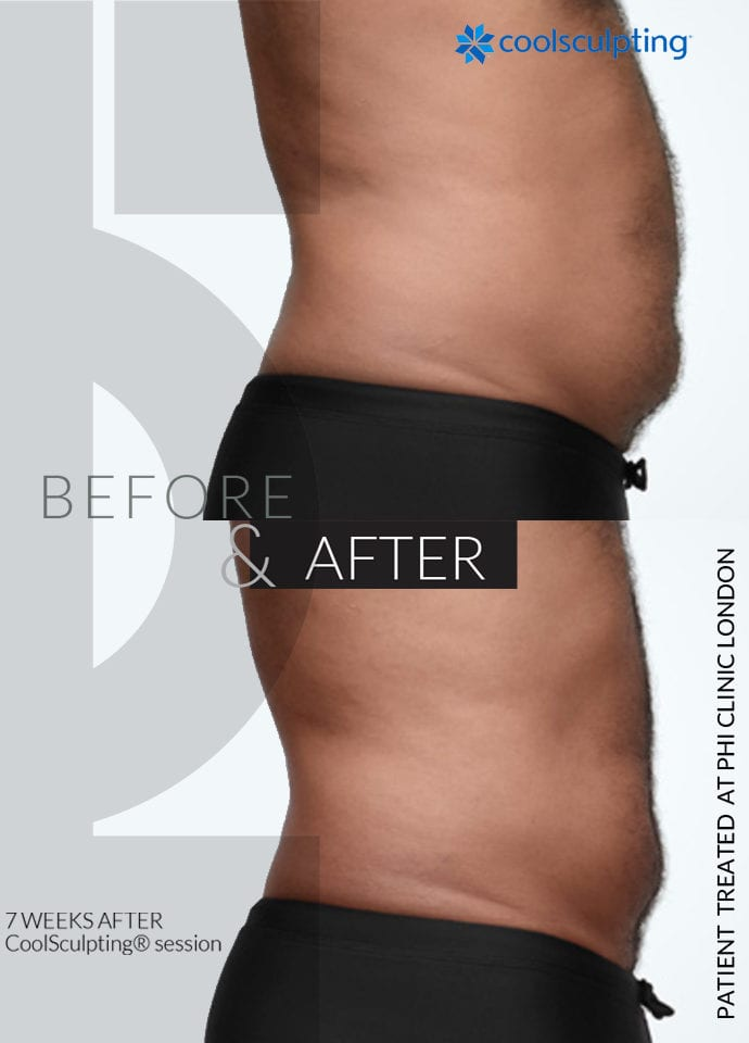 Is Body Image Important?  - stomach fat treatment harley street 690x960 1 690x960