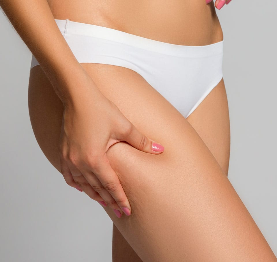 Cellulite Reduction Image