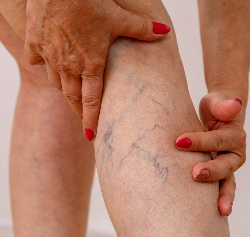 Red Vein Removal Image