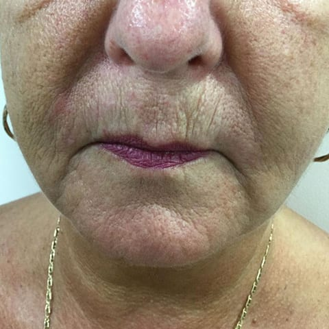 Dermal Fillers Marionette Lines Before and After