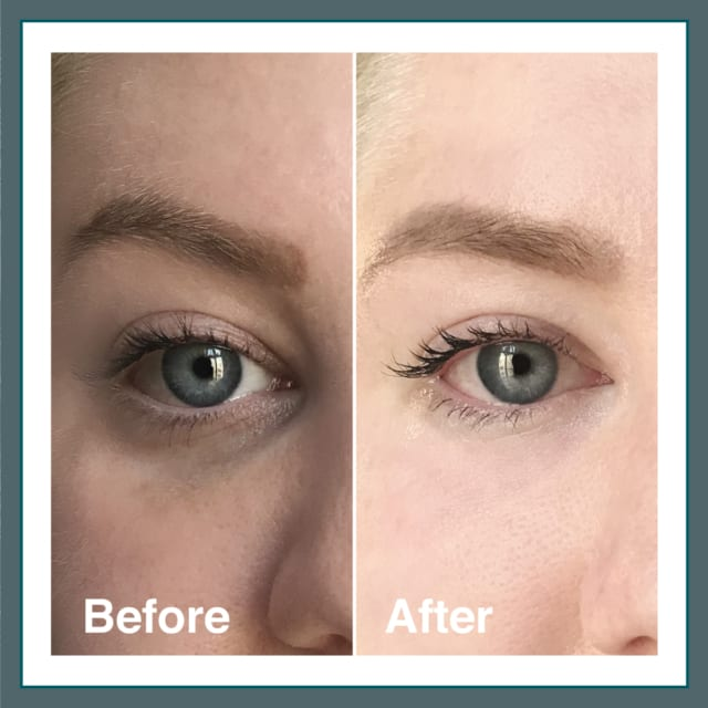 Light Eyes Treatment Before & After