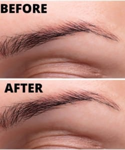 Before and After Botox Eyebrow Lift