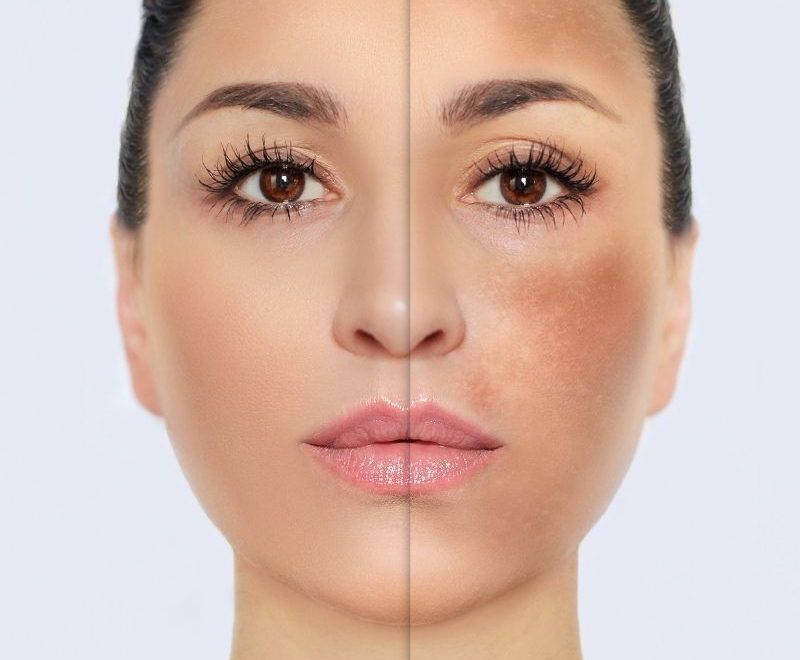The Perfect Chemical Peel