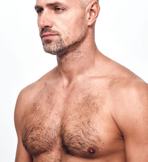 Male Areola Reduction