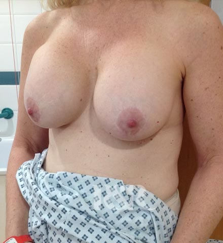 Reshape & Restore - Removal of implants and breast lift